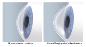 cornea-shape-keratoconus